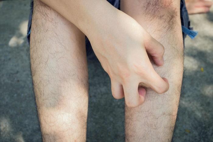 Значение приметы чешется нога