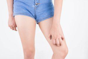 Чешется нога у женщины
