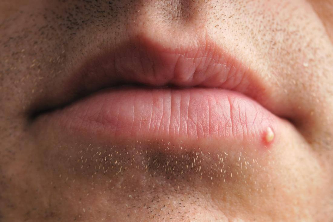 Прыщ над верхней или нижней губой