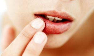Сыпь возле губ или в уголках рта